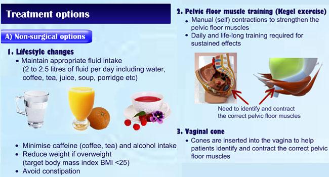 Stress Urinary Incontinence | QRSPelviCenter
